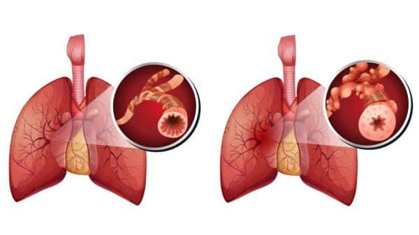 Alerjik Astıma Karşı Koruma Saglayan aşı