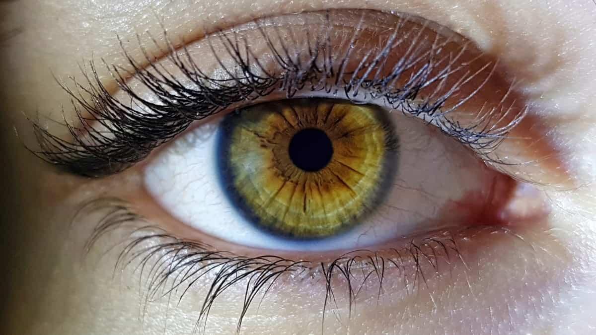 Göz Kapağı Seğirmelerine Ne Sebep Olur